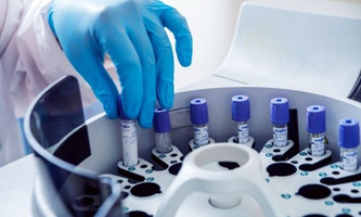 Tips for Purchasing Used Laboratory Equipment