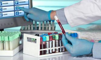 Best Practices for Storing Biological Samples