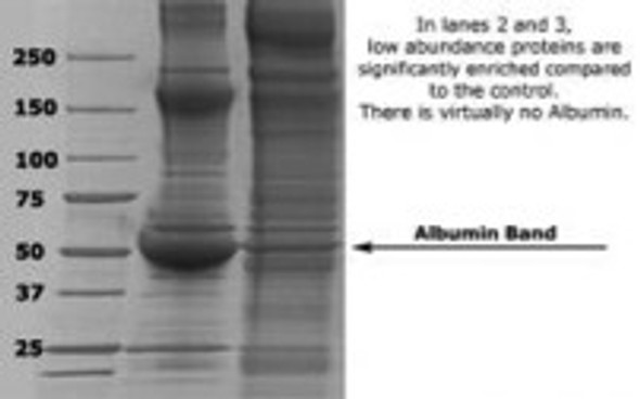 AlbuVoid™ - Albumin Depletion and Low Abundance Protein Enrichment Kit from Serum, Plasma, Tissues And Culture Media