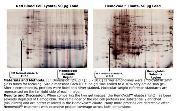 HemoVoid™ - Hemoglobin Depletion From Erythrocytes