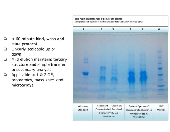 UPCK™ Urine Protein Enrichment / Concentration Kit