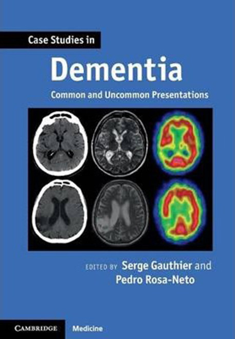 Case Studies in Dementia: Volume 1: Common and Uncommon Presentations