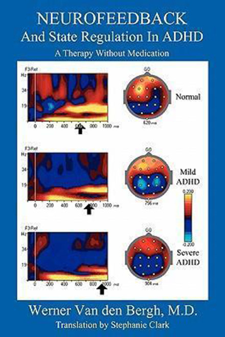 Neurofeedback and State Regulation in ADHD: A Therapy Without Medication