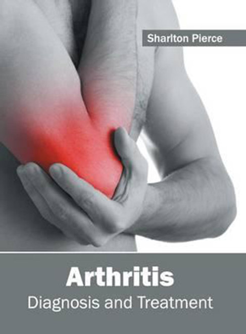 Arthritis: Diagnosis and Treatment