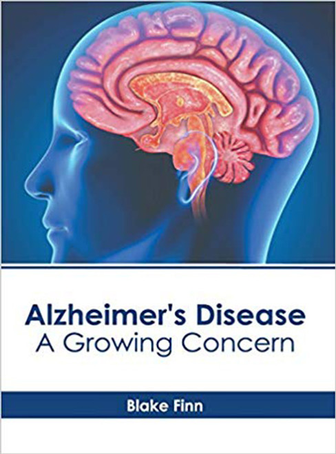 Alzheimer's Disease: A Growing Concern