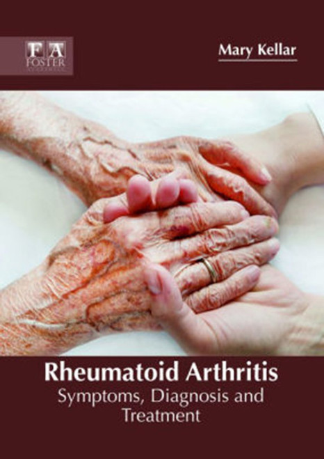 Rheumatoid Arthritis: Symptoms, Diagnosis and Treatment