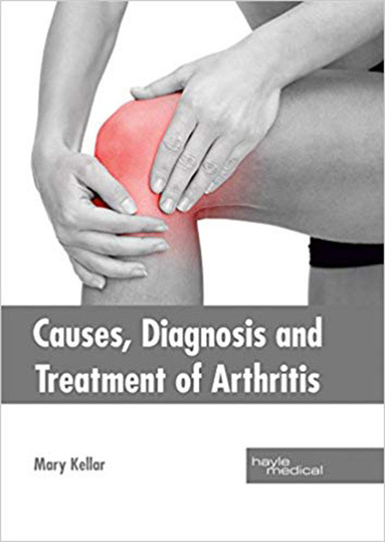 Causes, Diagnosis and Treatment of Arthritis