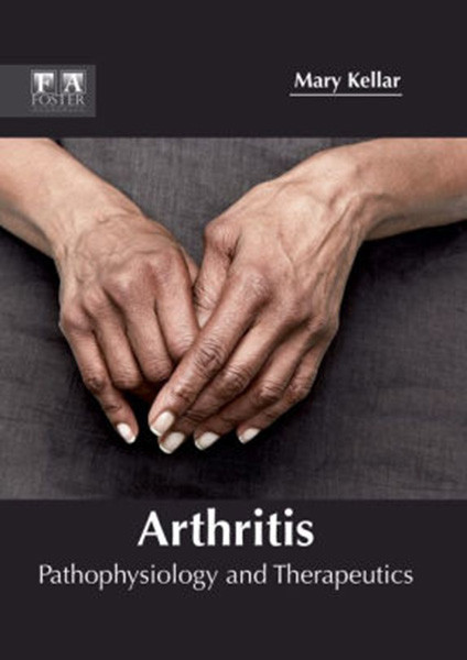 Arthritis: Pathophysiology and Therapeutics