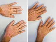 Vitiligo and Sun Exposure