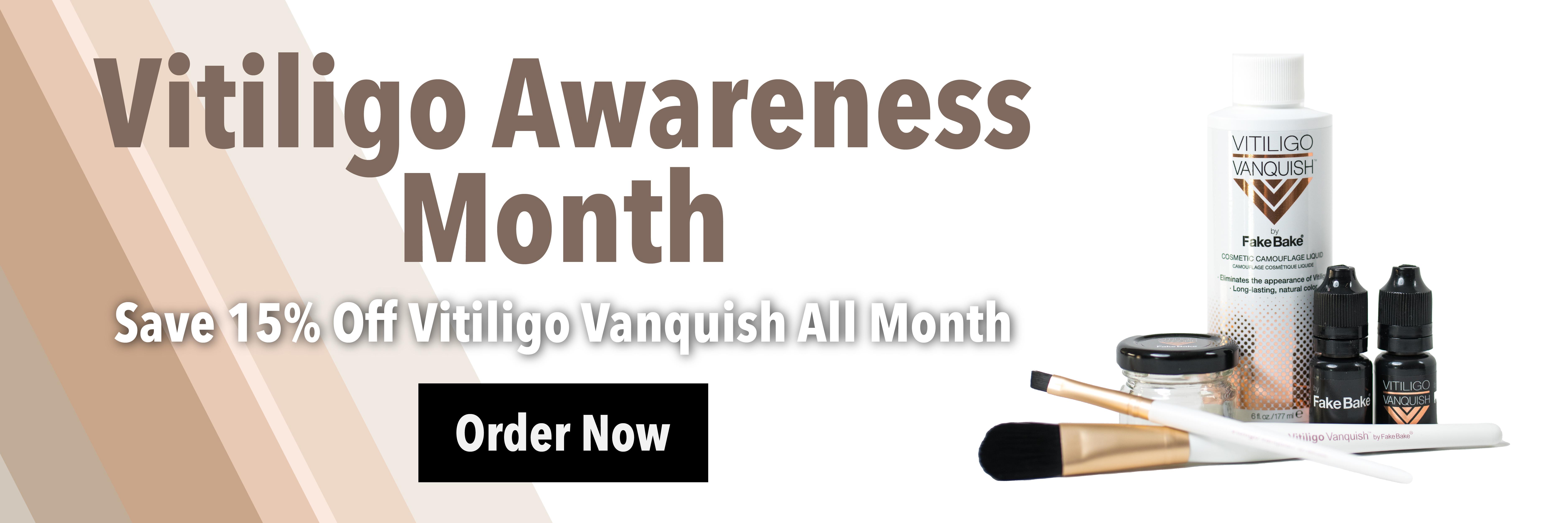 15% Off Vitiligo Vanquish