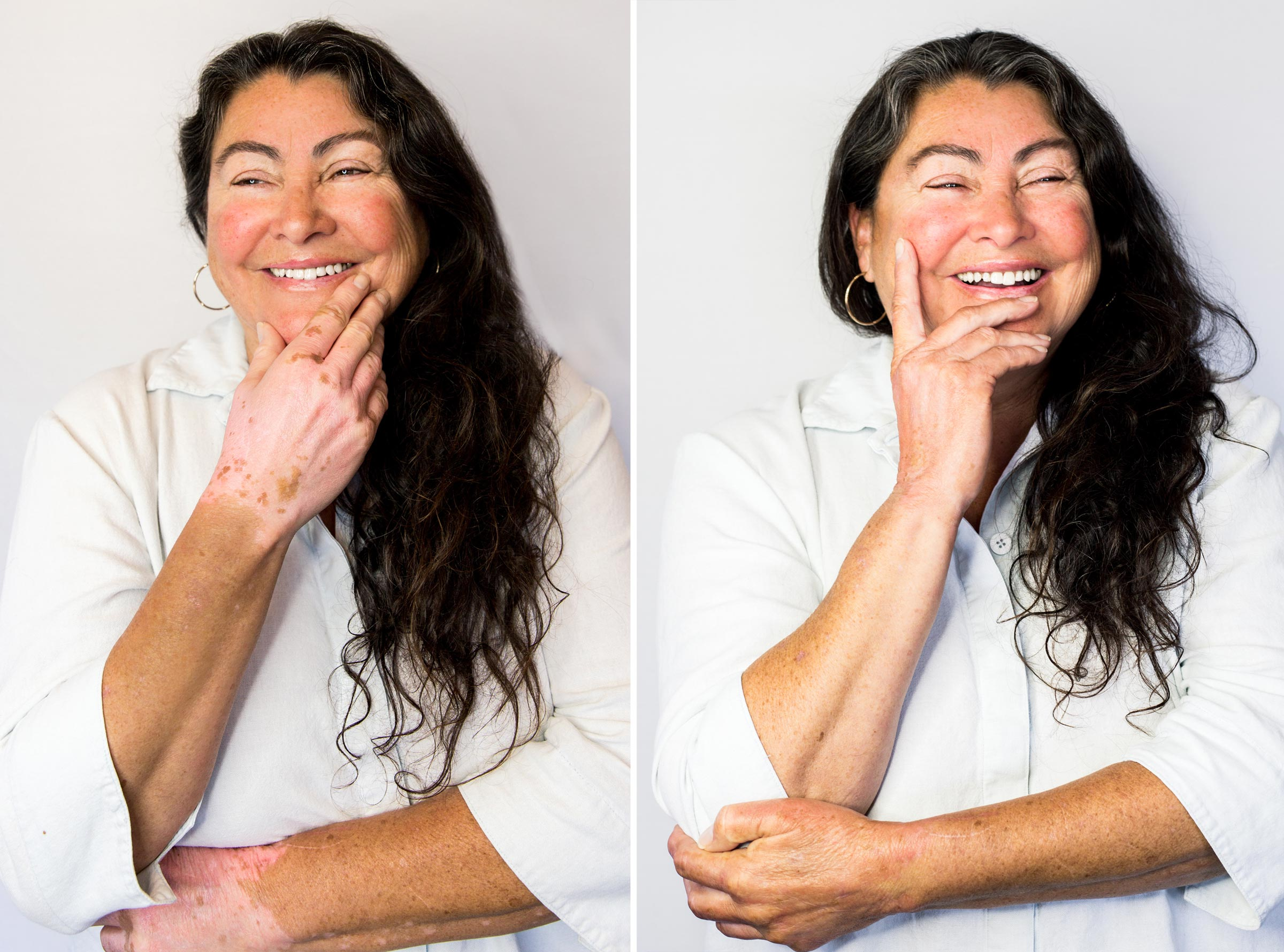 Vitiligo Vanquish can have you smiling again with greater confidence!
