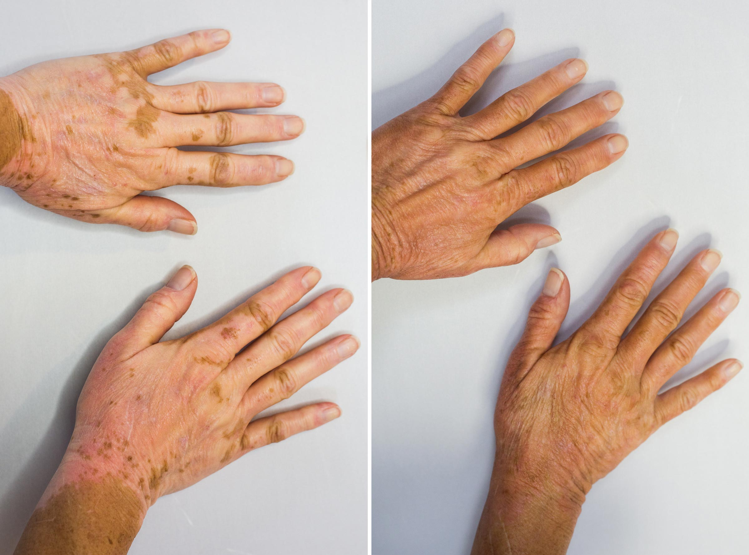The difference that Vitiligo Vanquish makes can be astonishing to you, but seem perfectly natural to others.
