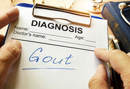 Gout in the Feet | Expert Guide to the Best Shoes for Gout