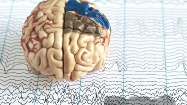 Epidiolex®: A Breakthrough CBD Anti-Epileptic Medication