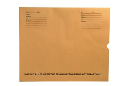 "Medical Folder Negative Preservers- Open End. 32 lb. Brown Kraft Stock, 100 Negative Preservers per Carton, Size 14 1/4"" X 17 1/2"""