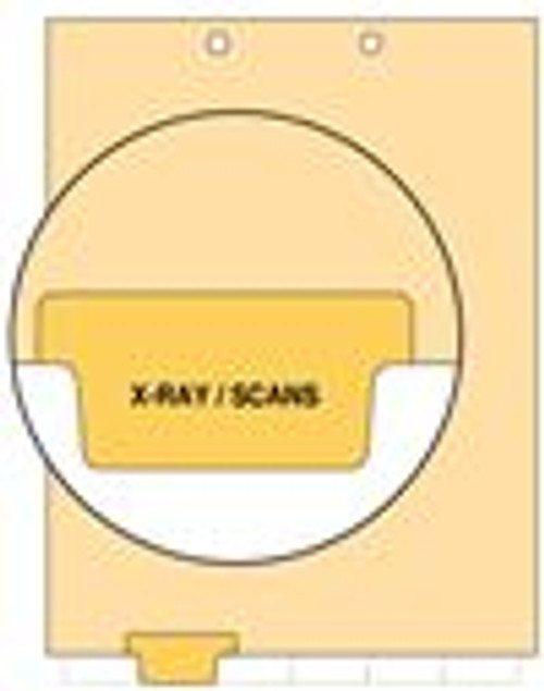 """X-Ray/Scans"" Bottom Tab Index Chart Divider - Yellow Tab in Position 2 - 100/Pack"