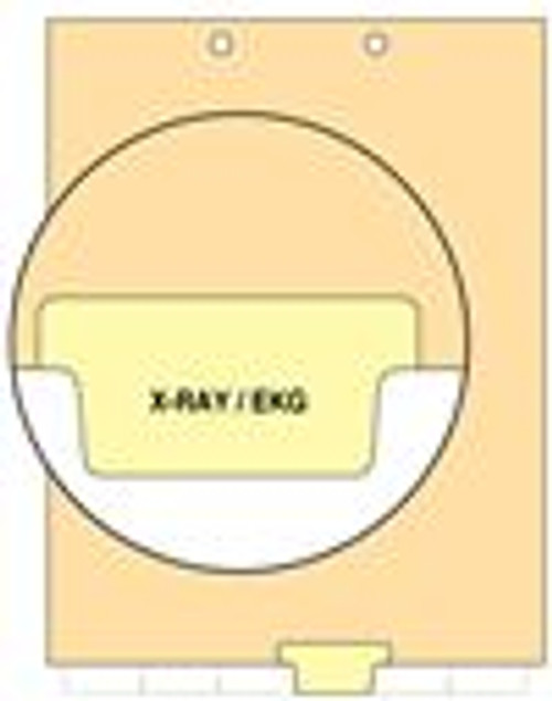"""X-Ray/EKG"" - Index Chart Divider-  Bottom Tab in Position 4 - Light Yellow Colored Tab - 100/Package"