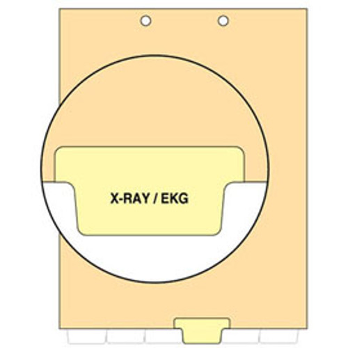"""X-Ray/EKG"" Bottom Tab-Chart Dividers -  Yellow Mylar Tab - Tab in Position 4 - Pack of 100"