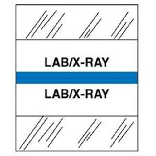 Amerifile (Tabbies Compatible) Chart Divider Tabs - Divider - Box of 100 - Blue - LAB/X-Ray