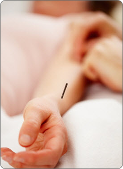 drnatura-alt-health-acupuncture-1-1-.png