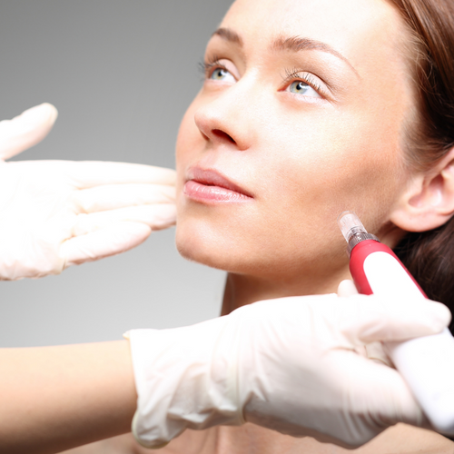The purpose of microneedling is to generate new collagen and skin tissue forsmoother and more toned skin. According to research, skin treated with four microneedlingsessions spaced one month apart produced up to a 400% increase in collagen and elastin sixmonths after completing treatment.  Microneedling aka Micro-fractional Collagen Stimulationis a treatment for  + reducing wrinkles and fine lines  + hair loss  + acne scarring  + helping to reduce sagging  + making your skin smoother  + improving your complexion  + improving your skin tone and texture.  The protocol is a series of three microneedling treatments several weeks apart. You will see long term results when you receive 3 to 4 treatments a year for maintenance.  Plus, I useMy Zen Skin Careproducts - Younger Skin in a Bottle -that are based on Chinese medicine, include Chinese herbs, essential oils, peptides, hyaluronic acid, and other active ingredients, and are balanced to address a myriad of skin issues.  Three to five sessions about three 2 weeks apart are recommended because it takes the bodysome time to create new, strong collagen.