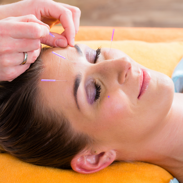 Cosmetic Acupuncture  with Dr. Martha Lucas