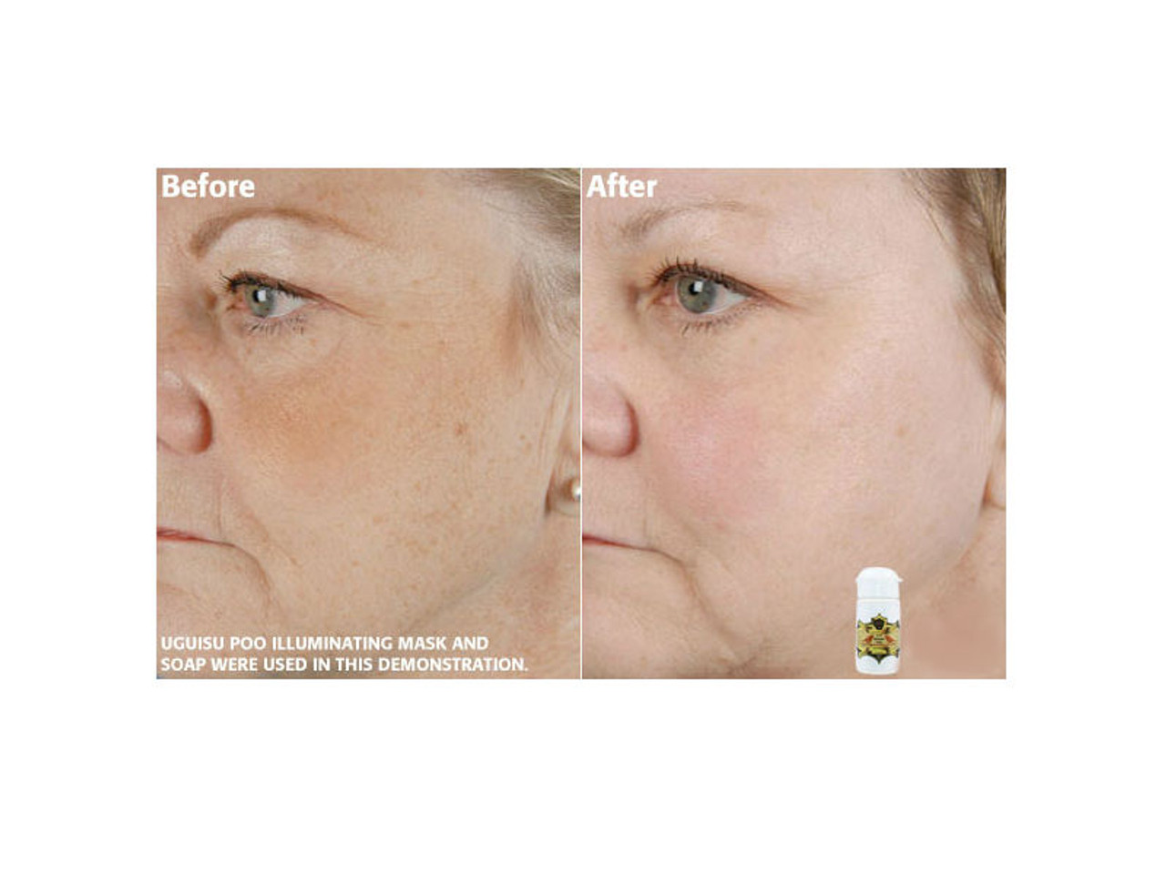 Before and after pictures of the Illuminating Mask