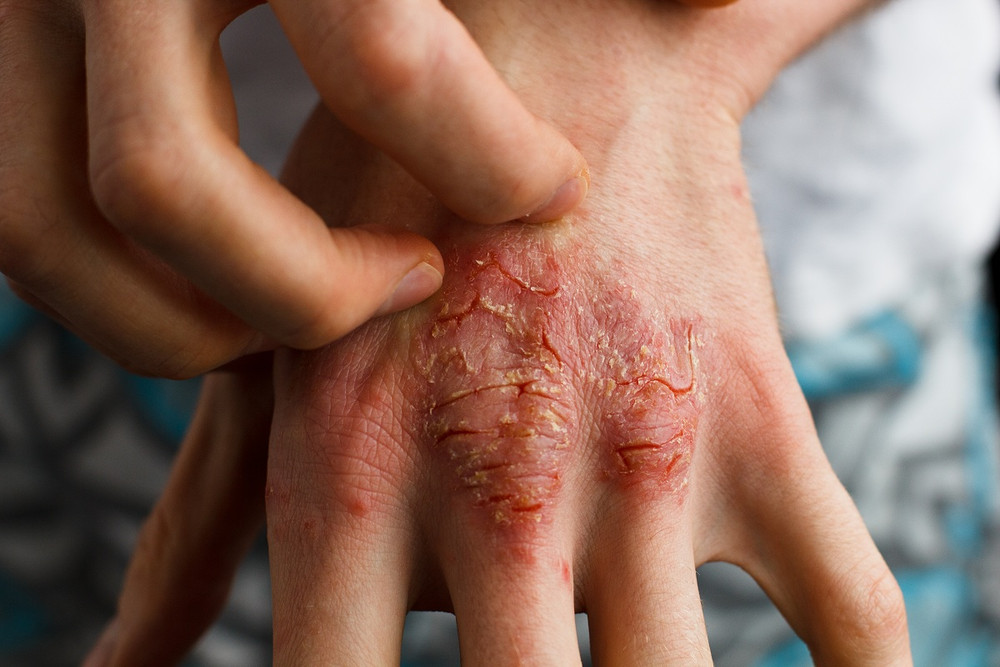 CBD: Does it Help Soothe Eczema and Psoriasis?