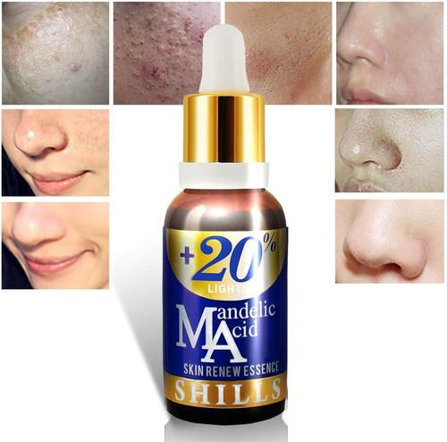 SHILLS Mandelic Acid Face Serum- Anti Acne & Scar Face Serum