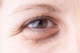 9 Causes of Dark Eye Circles - Take action to reduce dark circles under eyes with natural, noninvasive methods