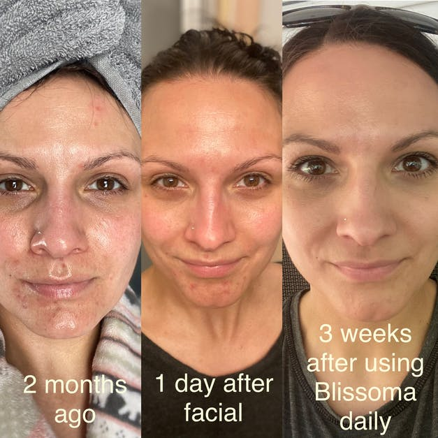 Results after 3 weeks with Blissoma skincare Pure Sensitive Care Complex and Smooth A+ Correcting Serum for acne and sensitive skin