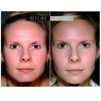 Before and After: C-Shield™ Vitamin C Serum