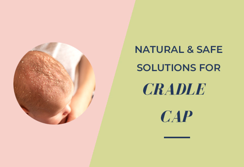 Natural and safe cradle cap solutions for baby