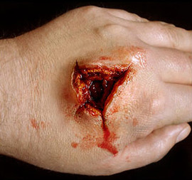 Large Exit Wound
