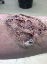 Infected Wound