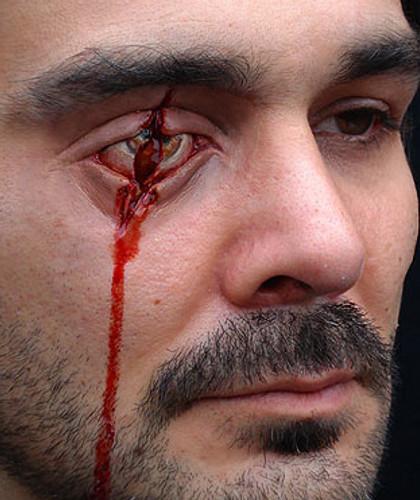 Slashed / Stabed Eye
