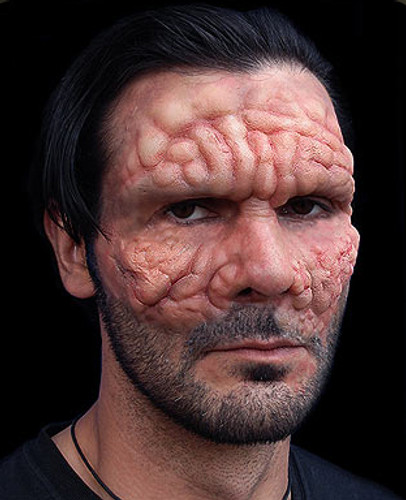 Leprosy / Diseased