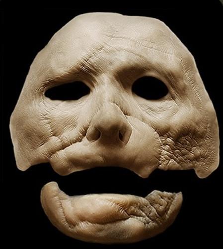 Burn Victim / Facial Trauma Scar Prosthetic