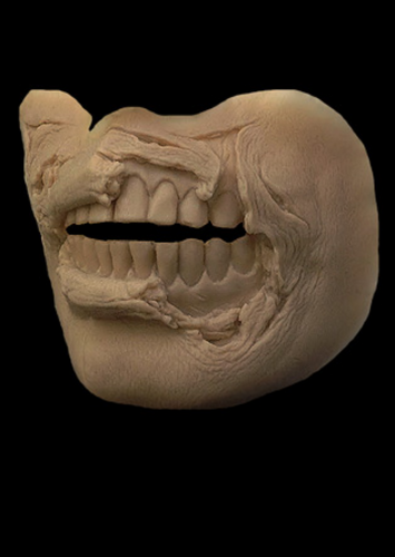 Silicone Exposed Teeth