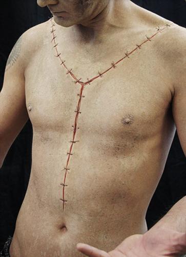 Siliocne Autopsy Scar