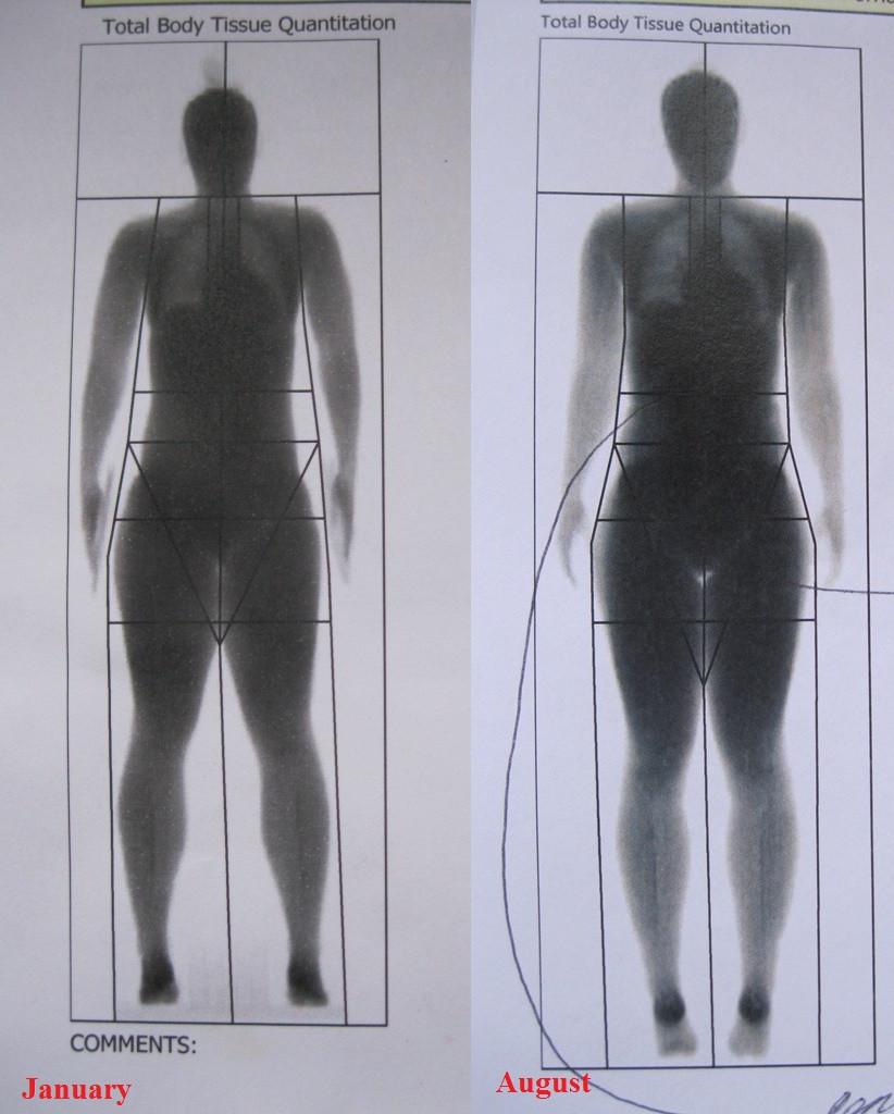The DEXA Scan - Accurately monitoring your progress