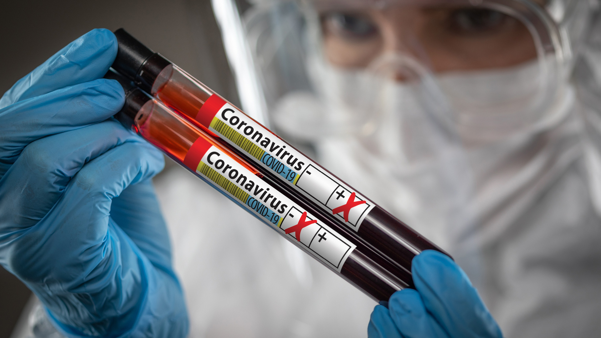 Coronavirus Workplace Health & Safety – What you need to know