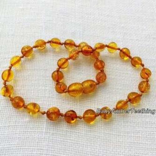 """Honey amber"" necklace"