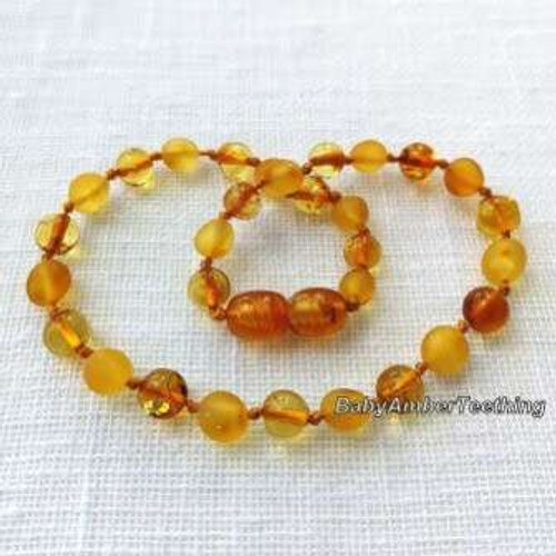 """Baby lemon"" amber necklace"