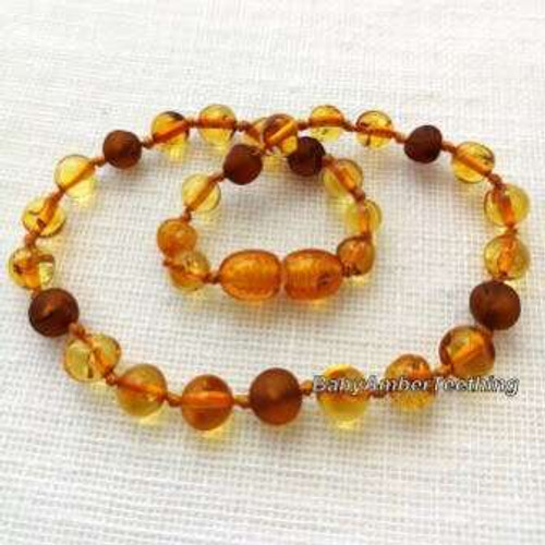 """Lemon & cognac"" unpolished amber necklace"