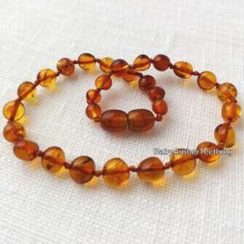 """Sweet cognac"" amber necklace"