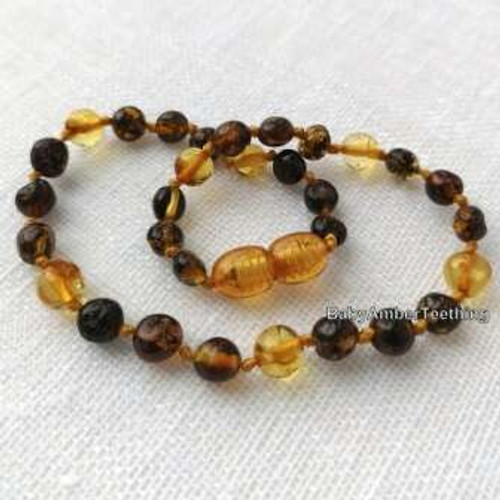 """Amazing honey and cherry colour"" amber beads"