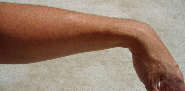 relaxed-wrist-without-arm-chaps-protection-620x305.jpg