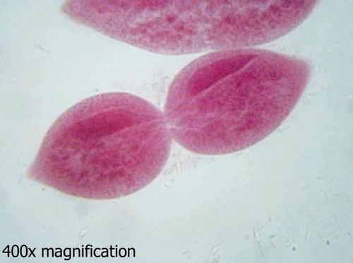 Paramecium slide, fission, w.m.
