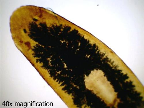 Planaria (flatworm) slide, w.m.